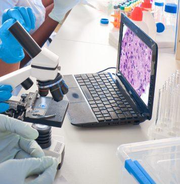 PCR Testi